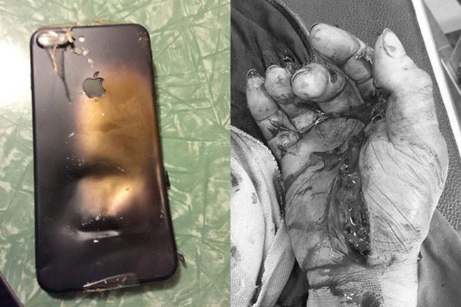 Chiếc iPhone phát nổ khiến ông Trần Văn Hậu, 38 tuổi ngụ Bắc Giang chấn thương tay