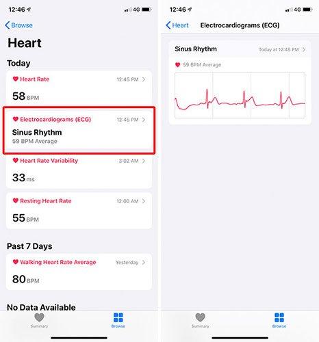 Nhấn vào Electrocardiograms (ECG)